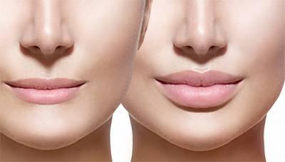 контурная пластика губ цена