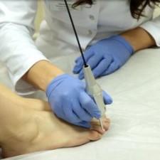 analiz-na-gribok-nogtey